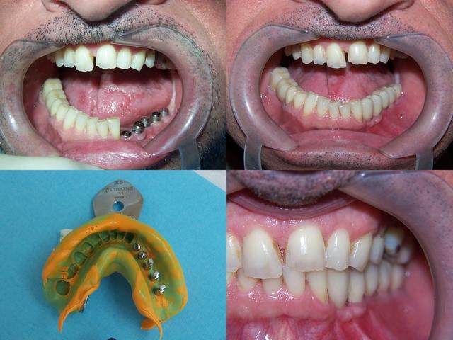 dentiste nogent sur marne implant dentaire pratique drs marc amar et jonathan amar. Black Bedroom Furniture Sets. Home Design Ideas