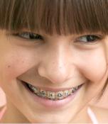 dentiste nogent sur marne le traitement en orthodontie drs marc amar et jonathan amar. Black Bedroom Furniture Sets. Home Design Ideas